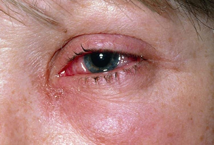 А вот солнечный ожог глаз, сопровождающийся неприятными и небезопасными симптомами, требует лечения у врача.