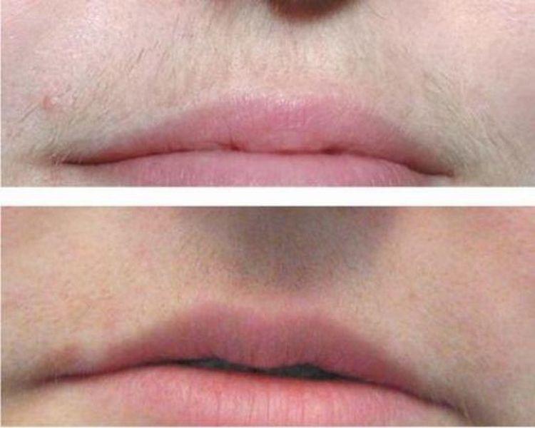 При помощи пасты удалось удалить ненужные волоски над верхней губой.