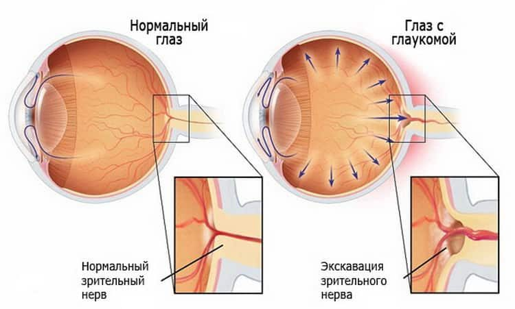 Глазные болезни: описание всех, симптомы и лечение народными средствами в домашних условиях