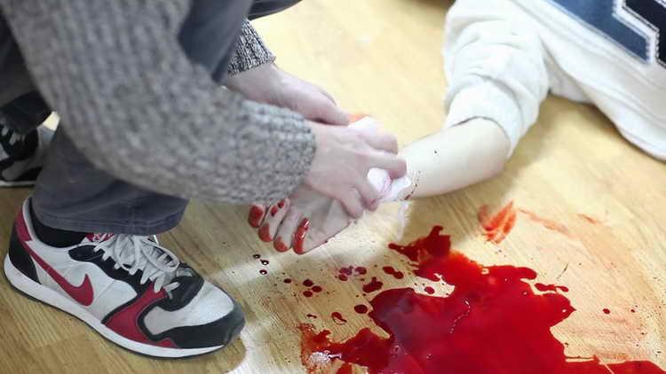 первая помощь при венозном кровотечении кратко