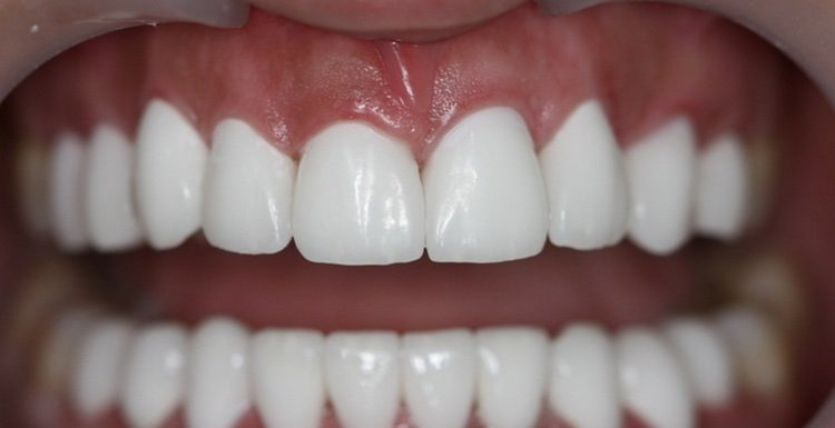 После использования щеточек из сальвадоры зубы выглядят значительно лучше.