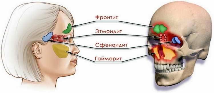 хронический синусит симптомы и лечение у взрослых