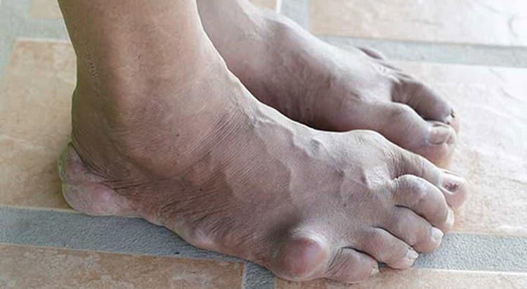 Поговорим о лечении подагрического артрита.