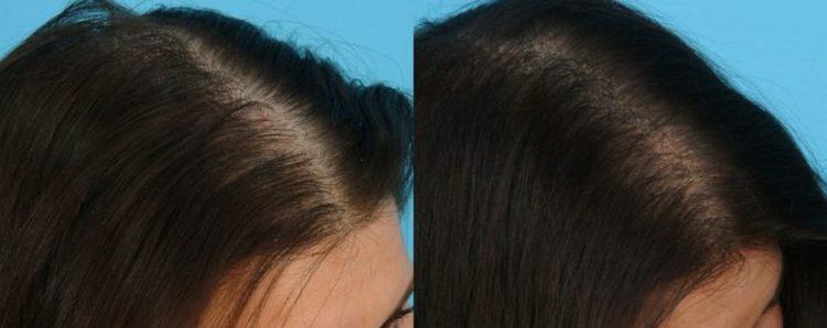 Почитайте также отзывы о домашних масках против выпадения волос.