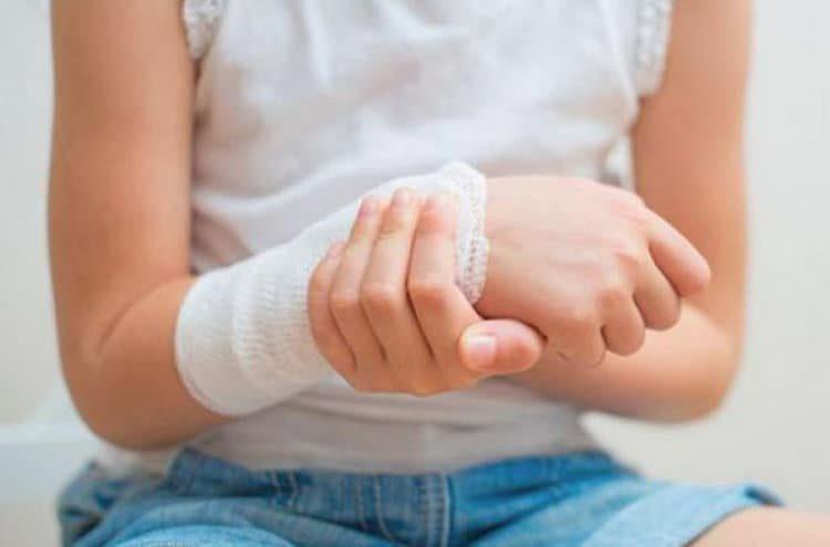 Поможет ли синяк при травме