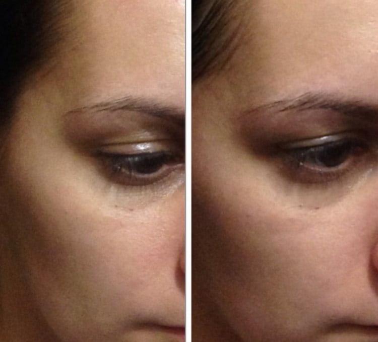 При регулярном использовании маски из огурца кожа лица становится более нежной и гладкой.