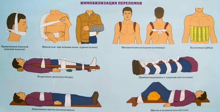 оказание первой медицинской помощи при переломах