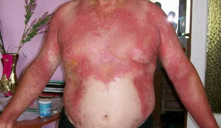 Если поражен большой участок кожи. надо немедленно ехать в больницу.