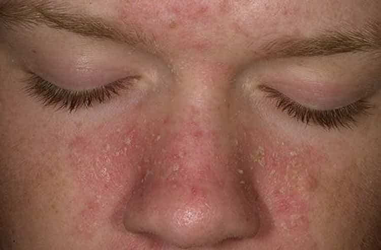 Все о причинах, симптомах и лечении себорейного дерматита на лице