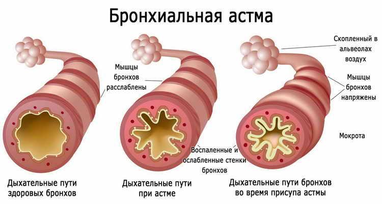 гельземиум при гриппе