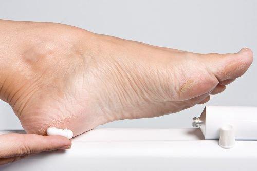 Сухая кожа ног