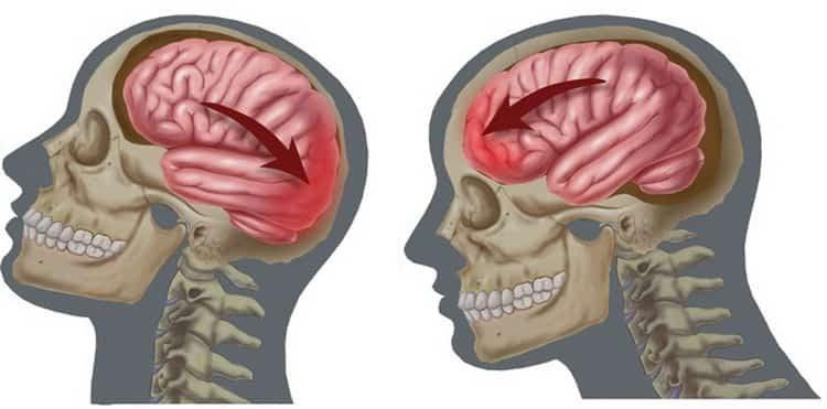сотрясение мозга лечение в домашних условиях