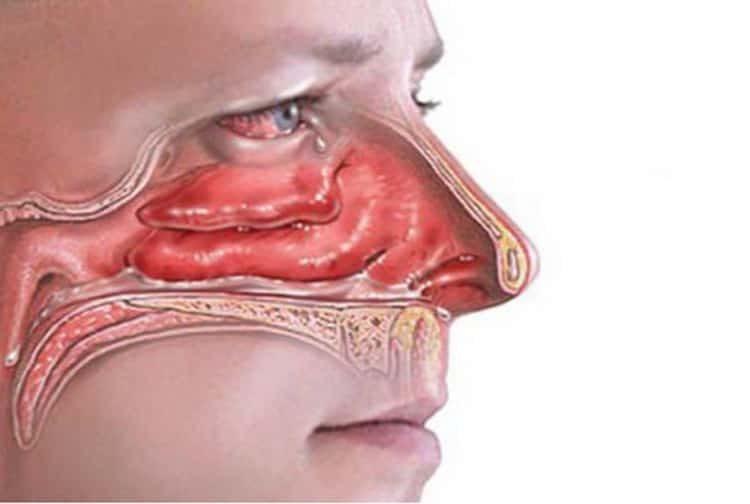 болячки в носу причины и лечение у взрослого