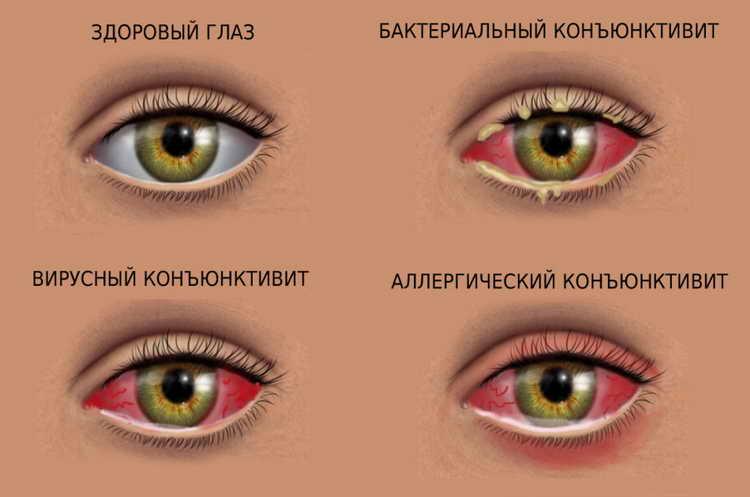 дергается глаз верхнее веко температура