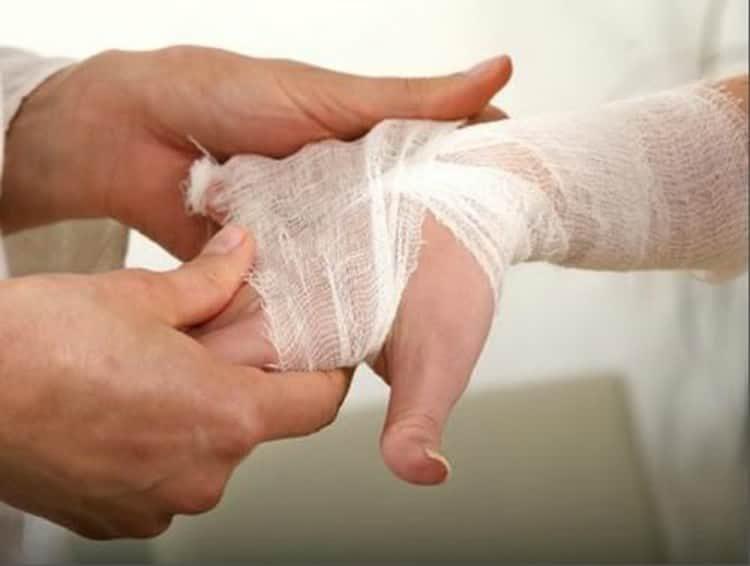 Химический ожог кожи: симптомы и лечение народными средствами в домашних условиях