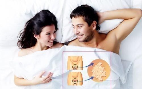 ВПЧ у мужчин и женщин