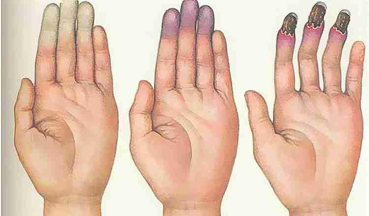 Пихта сибирская поможет спастись от болезни рейно
