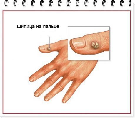 Шипица на руке