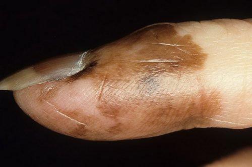 Лентигинозная меланома