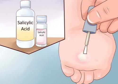 Удаление папиллом салициловой кислотой