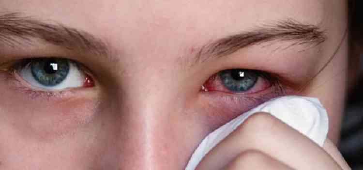 Алтей поможет при воспалении глаз