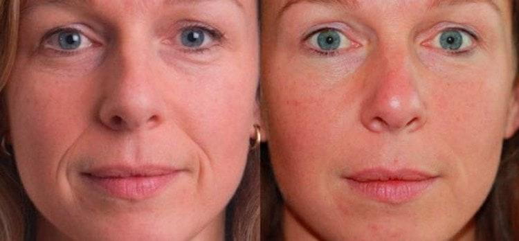 такие маски дают очень хорошие результаты, особенно при условии регулярного проведения процедур.