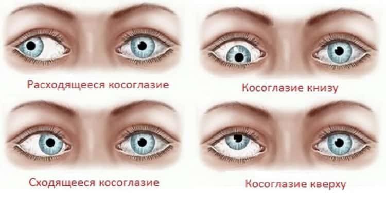 Косоглазие у взрослых: причины, симптомы и лечение народными средствами в домашних условиях