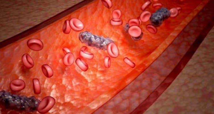 Причиной нарушений вестибулярного аппарата, которые требуют лечения, может быть заражение крови.