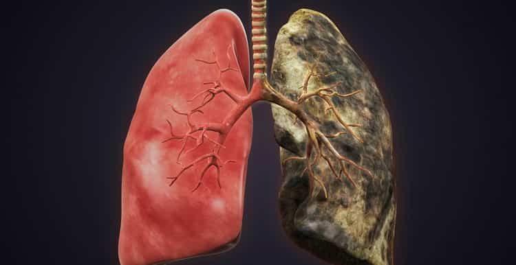 Восстановление организма после отказа от курения в домашних условиях