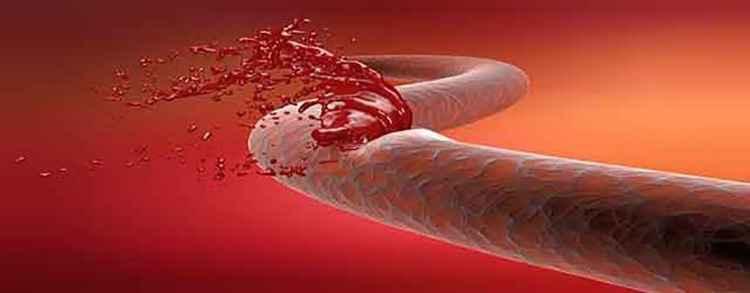 Пастушья сумка поможет при внутреннем кровотечении
