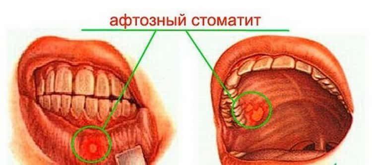 афтозный стоматит у детей: лечение