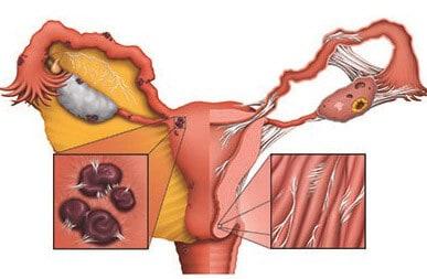 Заражение репродуктивных органов палочкой Коха