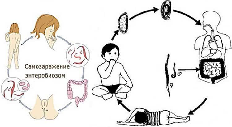 энтеробиоз у детей симптомы и лечение