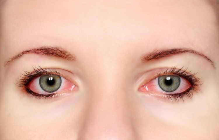 глазное давление лечение