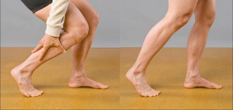 При этом заболевании из-за боли в икроножных мышцах человек нередко начинает прихрамывать.