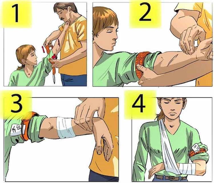 первая помощь при открытом переломе конечности