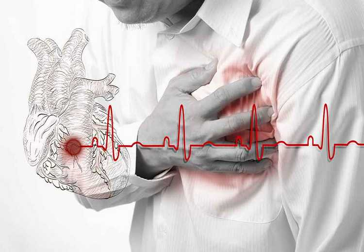 При ишемической болезни сердца также лечатся солянкой холмовой.