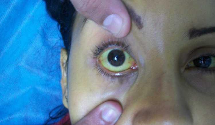При тяжелой формы заболевания наблюдаются признаки желтухи.