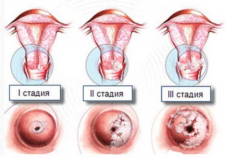 Лейкоплакия шейки матки: причины, симптомы и лечение без операции народными средствами в домашних условиях