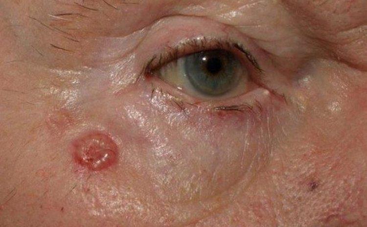 Лечение базалиомы на лице можно проводить при помощи народных средств.