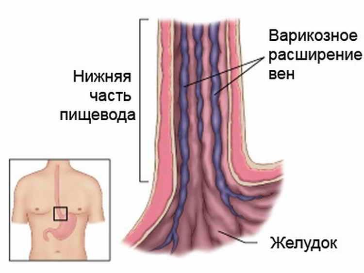кровотечение из заднего прохода у мужчин причины