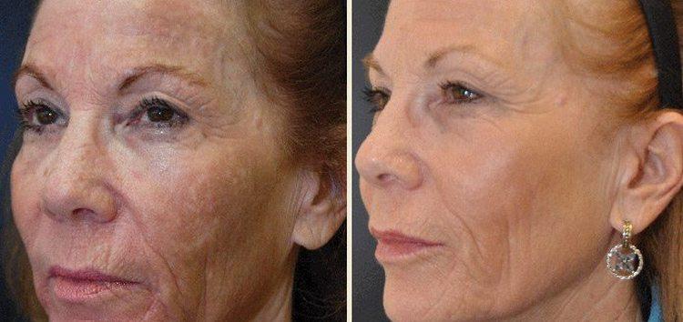 Особенно хорошо заметен эффект от такой маски на возрастной коже.