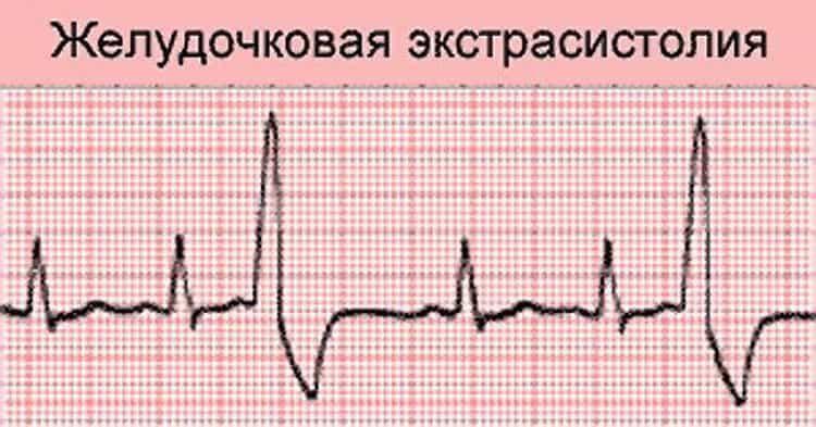 Экстрасистолия сердца: что это такое и как это лечить народными средствами