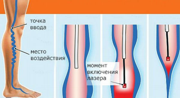 Эндовазальная лазерная коагуляция фото
