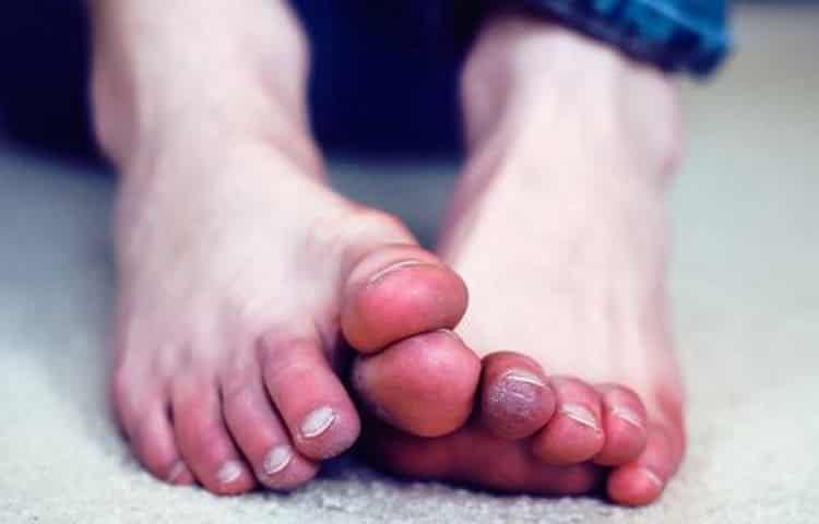 Онемение пальцев ног: причины, симптомы и лечение народными средствами в домашних условиях