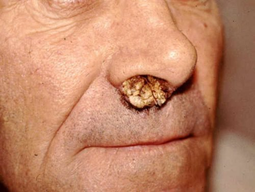 Бородавки носа