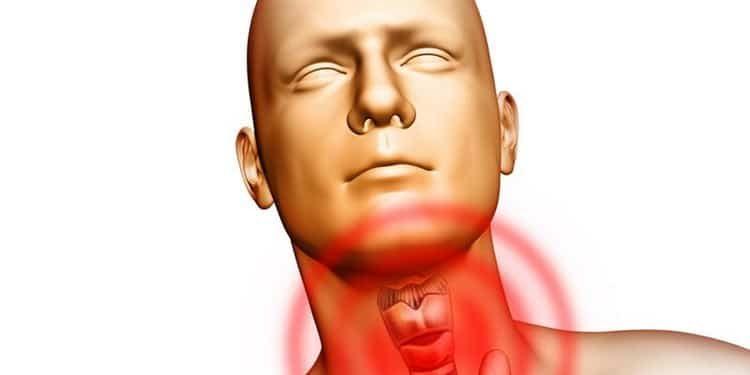 Цитомегаловирус: причины, симптомы и лечение без операции народными средствами в домашних условиях