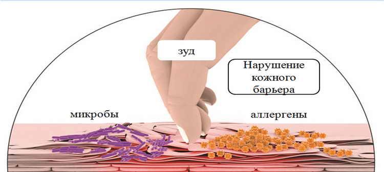 дерматит у детей фото симптомы и лечение