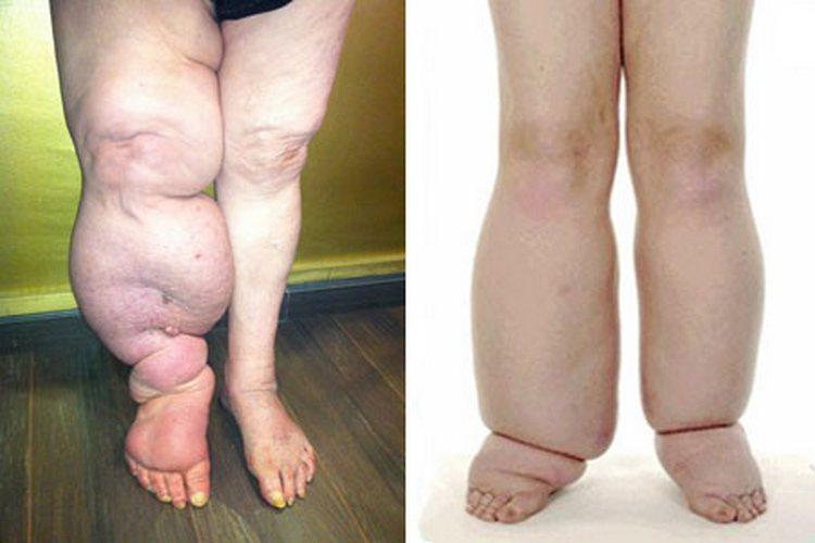 Если не проводить лечение лиимфостаза нижних конечностей, последствия могут быть самыми печальными.