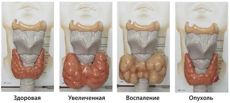 Щитовидная железа: симптомы и лечение народными средствами в домашних условиях